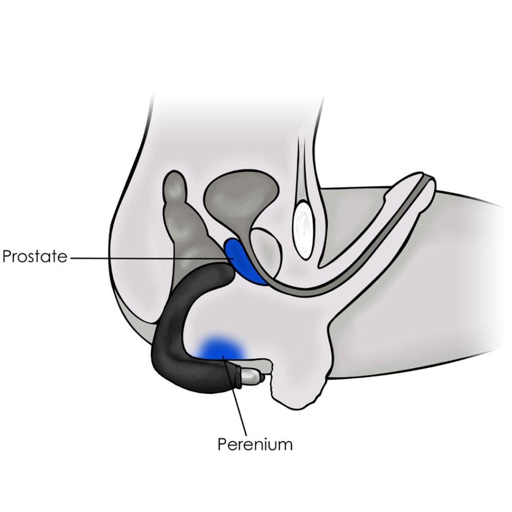 bondage anleitung prostata vibrator